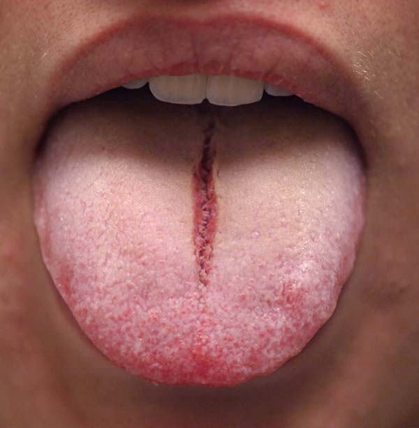 Secondary herpetic stomatitis and cold sores (herpes labialis):